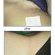 Indications-263w-laser-permanent-hair-reduction-treatments