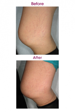 Indications-263w-laser-vein-treatments-vascular